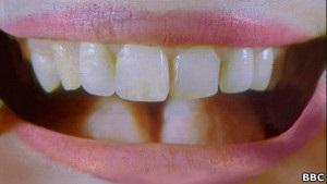 Вчені виростили зуб з клітин ясен