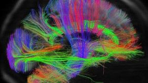 Стартував міжнародний науковий проект з детального вивчення людського мозку