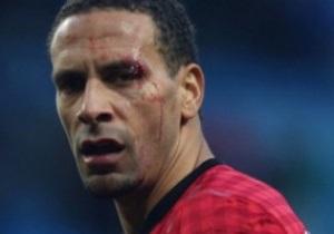 Болельщику, напавшему на Фердинанда,  пожизненно запретят ходить на футбол