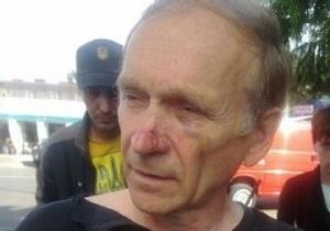 ЗМІ: Беркутівці побили односельця вбивці міліціонера
