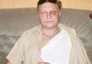 Блогеры уличили избитого на стадионе Динамо в украинофобии