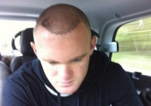 Руни в Twitter опубликовал фото пересаженных волос