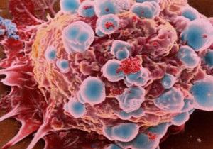 Рентген та аналіз крові може замінити лазер