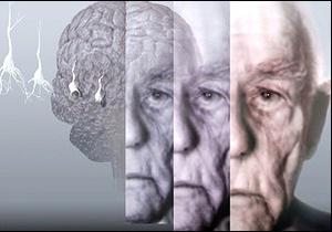 Вітамін В   захищає   від хвороби Альцгеймера