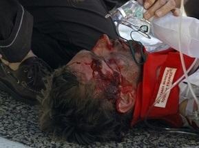 Немец получил сотрясение мозга и перелом скулы после падения на Тур де Франс