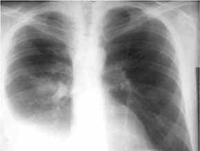 Епідемію туберкульозу в Харківській області не зупинено