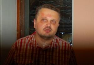 В Херсоне избили журналиста, пытавшегося задать вопрос мэру города