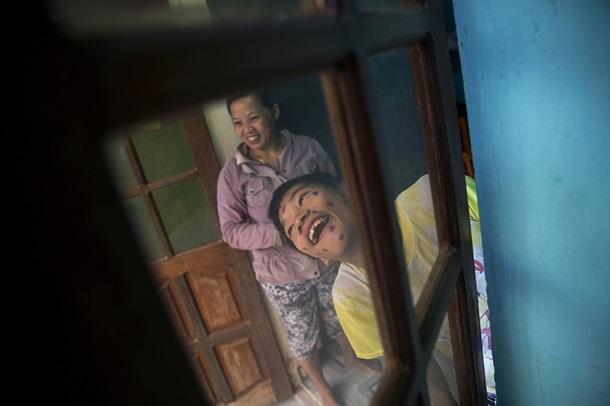 Жертвы Агента Оранж: последствия войны США против Вьетнама