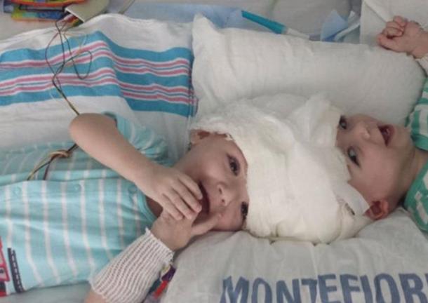Хирурги поделили сросшихся головами сиамских близнецов