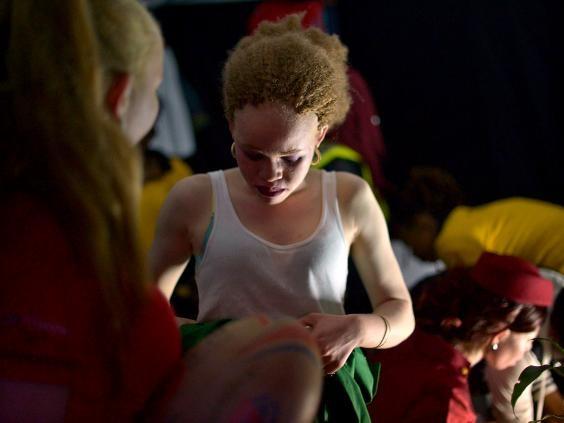 Впервые прошел конкурс красоты для альбиносов
