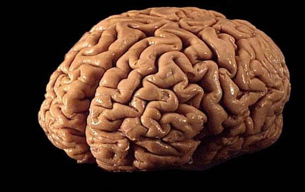 Мозг выдающегося математика оказался мозгом другого ученого