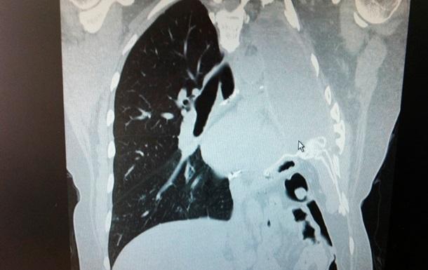 В Китае 8-летняя девочка заболела раком легких