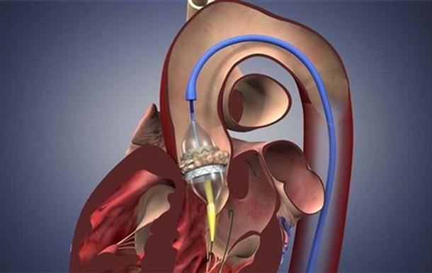ВОЗ предложили заново использовать сердечные имплантаты