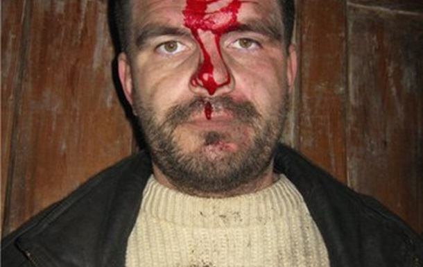 Криминальное давление на общественных деятелей в Луганской области