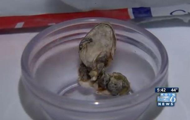 Американка обнаружила в упаковке фасоли змеиную голову