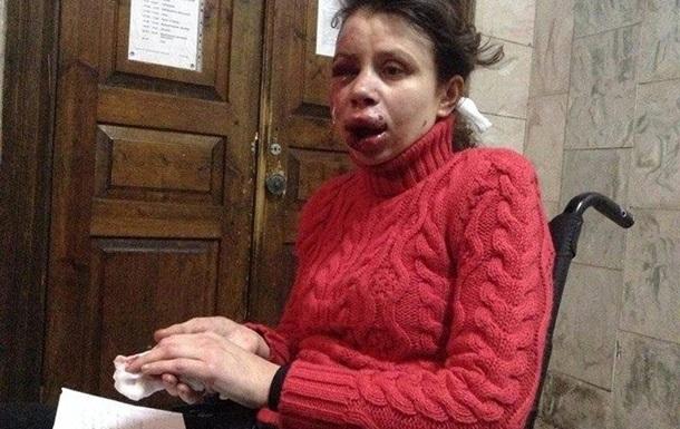 Татьяна Черновол получила тяжелые травмы
