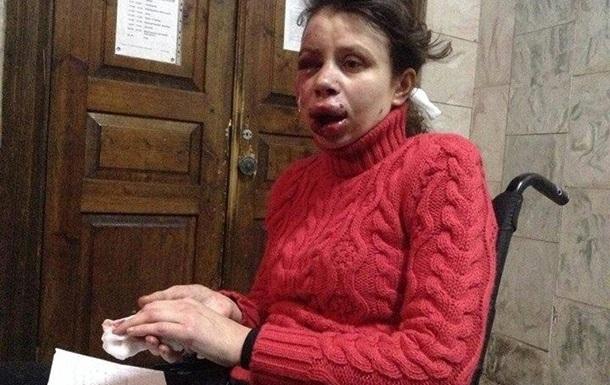 МВД опубликовало фото третьего подозреваемого в избиении журналистки Чорновол