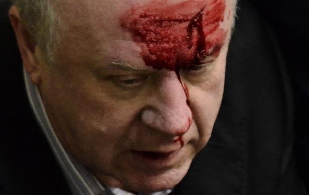ПР будет добиваться снятия неприкосновенности с депутата, разбившего лоб Малышеву