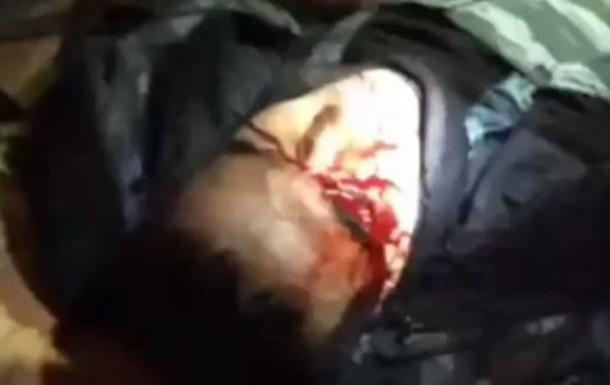 Видео с бойцом Беркута, лишившимся глаза