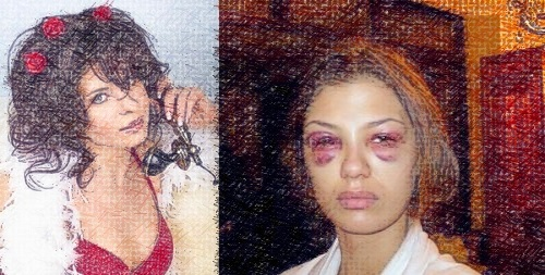 Эльмар Брок избил киевскую проститутку