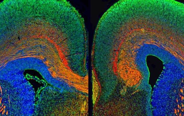 Яркие цвета помогают разобраться в работе мозга - ученые