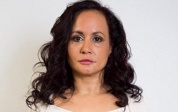 Британка 40 лет не улыбалась, чтобы не появились морщины