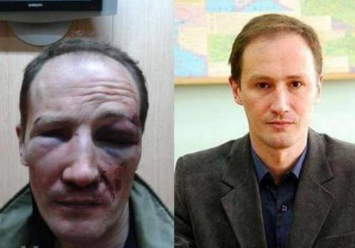 Одесский профессор-националист сам себя избил и ограбил. К чему бы это?