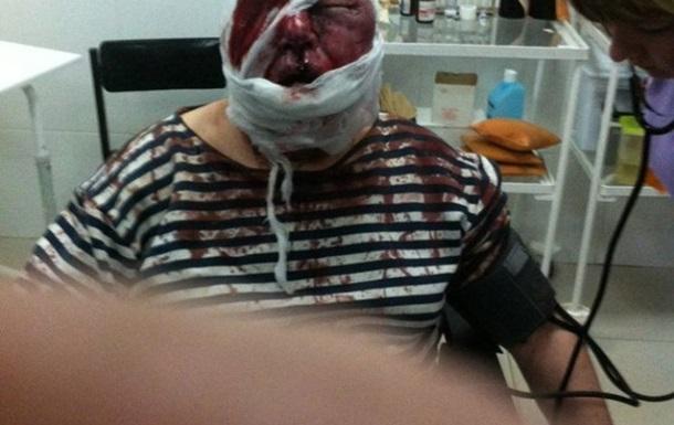 Депутат Харьковского горсовета заявил о жестоком избиении его родителей