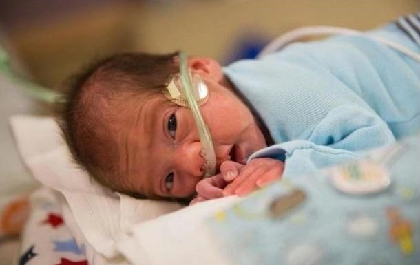 Американка с мертвым мозгом родила здорового ребенка