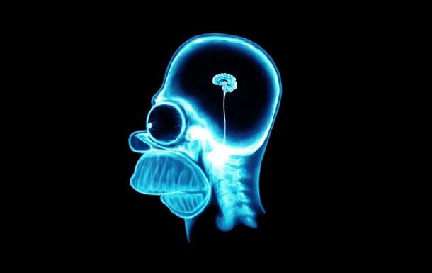 Беданутость головного мозга.