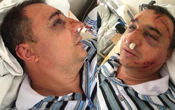 Ярлык на шее, или как расследуется дело избитого Клинчаева