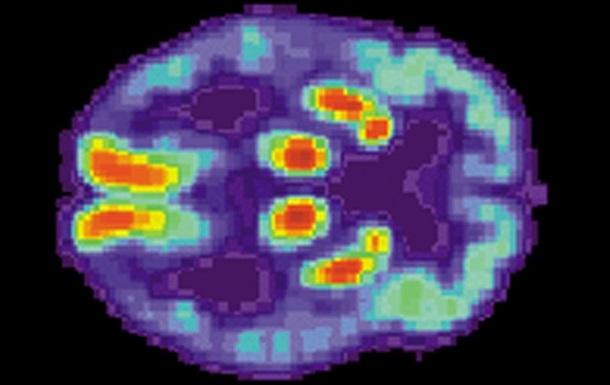 Вчені отримали нові дані про хворобу Альцгеймера