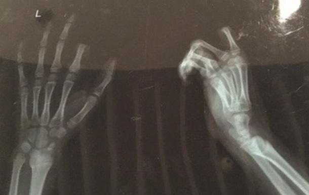 В Китае мальчик отрезал себе палец из-за спора с отцом