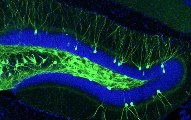 Ученые вернули память больным Альцгеймером