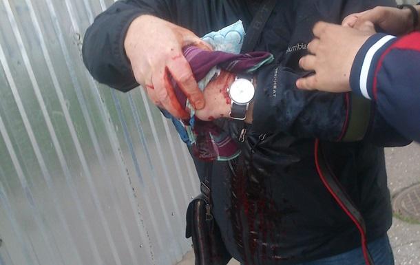 Взрыв в Одессе: активисту оторвало палец