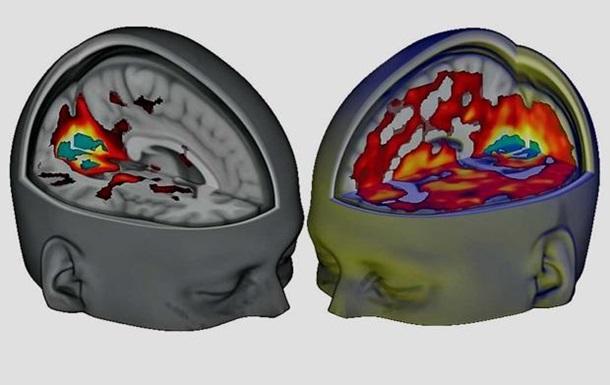 Мозг человека под ЛСД впервые изучили через МРТ