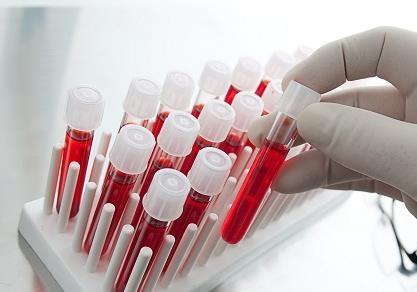 Розповсюдження гепатиту в зоні АТО – проблема яка вимагає термінового вирішення