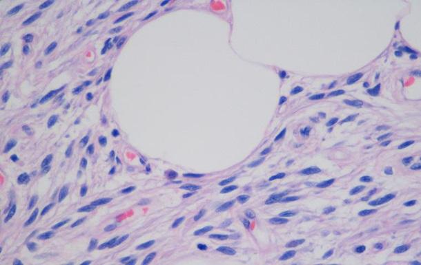 Создано нанолезвие для операций на клетках