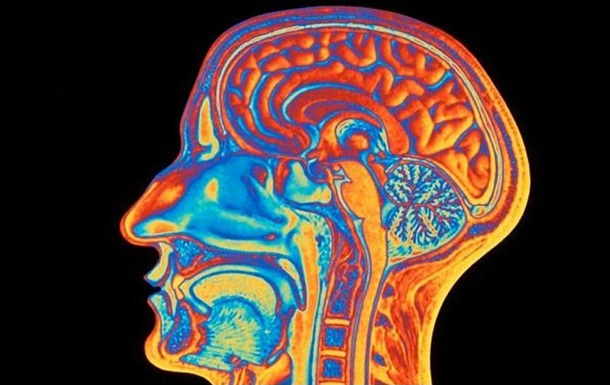Ученые объяснили причину превосходства мозга человека