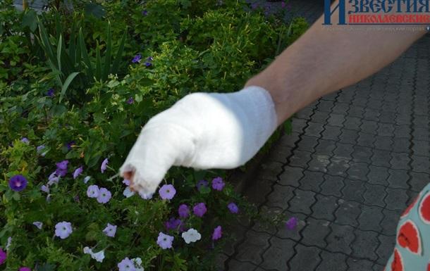 В Николаеве мужчину ранили из-за замечания о Путине