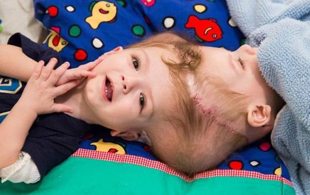 ВСША мед. сотрудники поделили годовалых сиамских близнецов