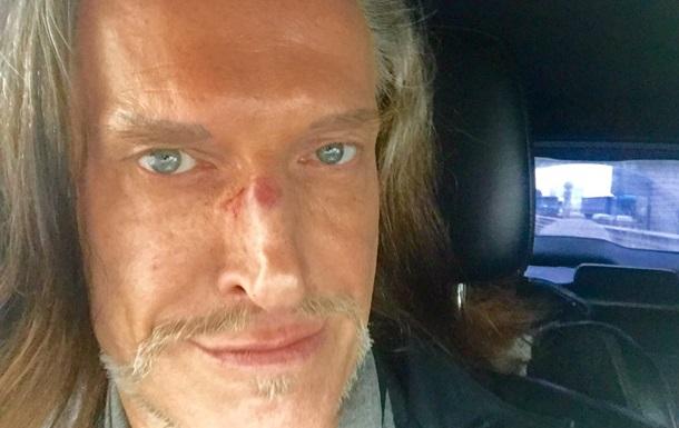 Джигурде разбили лицо перед зданием суда