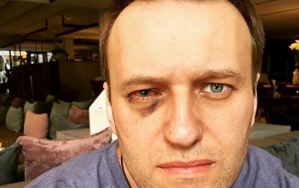 Алексею Навальному сделали операцию наглазу вИспании