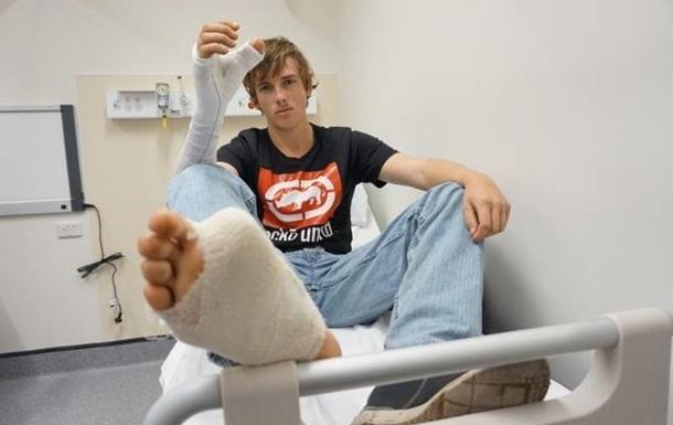 Австралийцу пересадили большой палец с ноги на руку