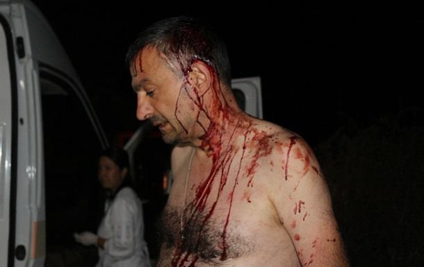 Нападение на главреда сайта на Одесчине: подозреваемые арестованы