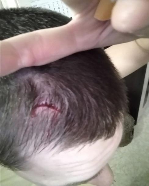 NoizeMC разбил голову фанату наконцерте