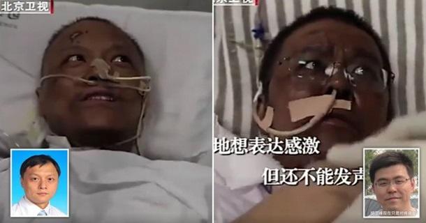 В уражених COVID-19 лікарів у Китаї потемніла шкіра