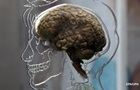 На видео показали  движение  мысли через мозг