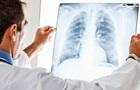 В Одесской области больной туберкулезом врач обследовал 600 детей