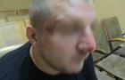 Українця побили під час в їзду в Росію - Держприкордонслужба